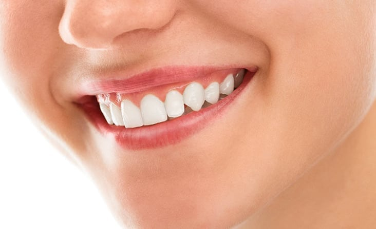 quincy-high-care-dentistry-dental-cleaning-checkups
