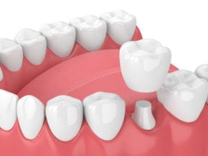 dental crowns Quincy MA