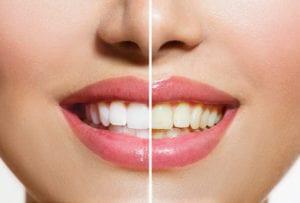 teeth whitening quincy ma